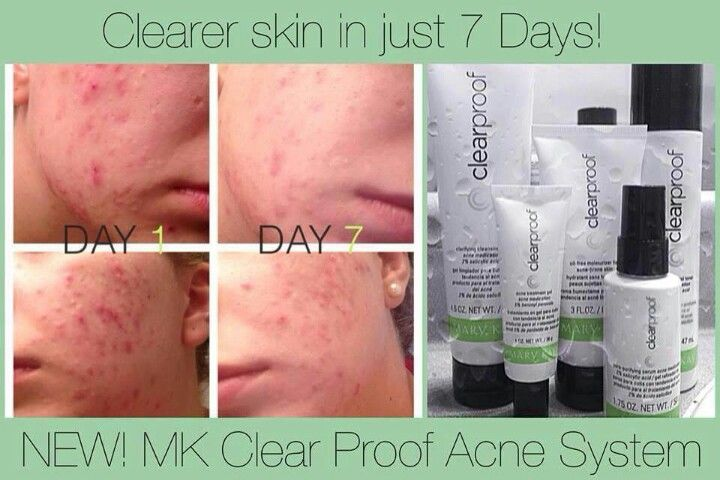 reviews on mary kay acne products